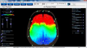 Brainwave_1 (1)