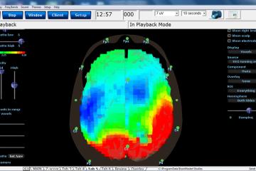 Brainwave_2 (1)